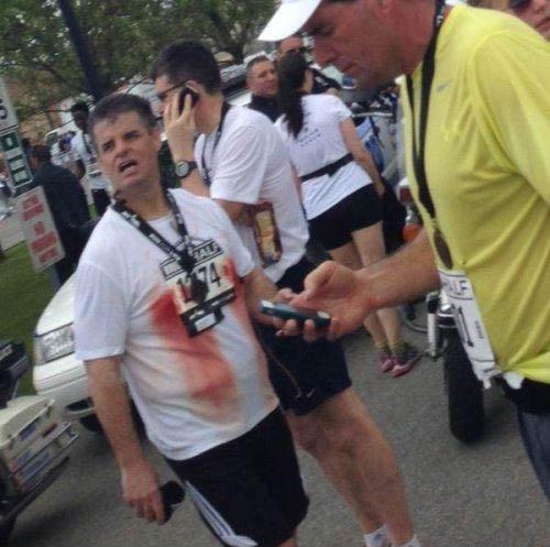 Ein Mann hat sich bei einem Marathonlauf die Brustwarzen so sehr aufgerieben, dass sie stark bluten.