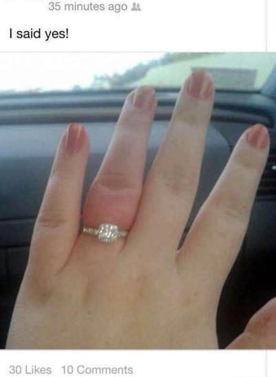 """Eine Frau trägt einen Verlobungring, sie hat gerade """"Ja"""" gesagt. Ihr Ringfinger ist stark angeschwollen."""
