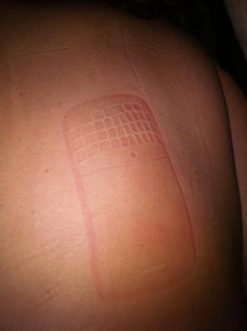 Ein Mann scheint auf seinem Smartphone (Blackberry) eingeschlafen zu sein. Nun kann man einen Abdruck des Handys auf seiner Haut erkennen.