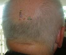 Glatzenmäher