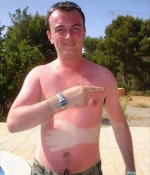 Ein Mann scheint beim Sonnen eingeschlafen zu sein. Dabei lag seine Hand auf seinem Bauch und nun hat er am ganzen Körper Sonnenbrand, nur auf seinem Bauch nicht. Dort ist ein weißer Fleck in Form einer Hand.