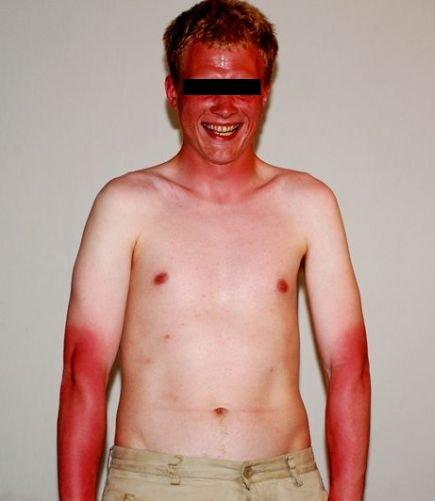 Ein Mann mit einem heftigen Sonnenbrand.
